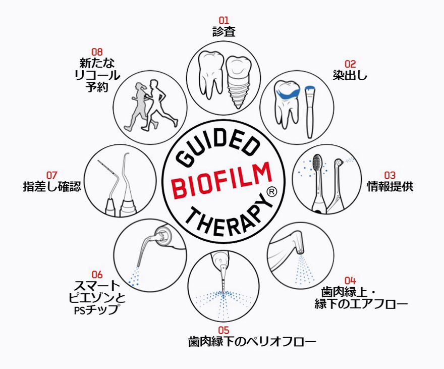 Guided Biofilm Therapy(GBT)